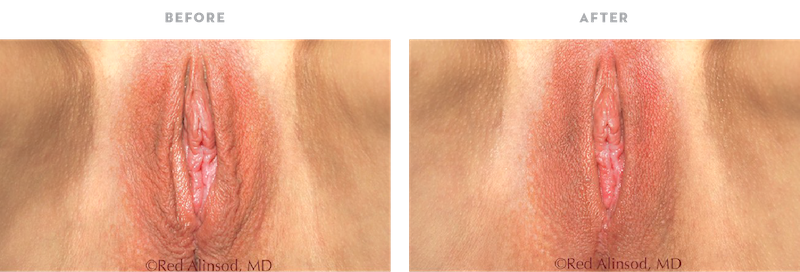 Excellent labia lift result with ThermiVa