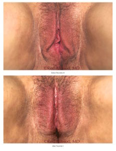 Excellent labia lift, non-surgical labiaplasty result with ThermiVa.